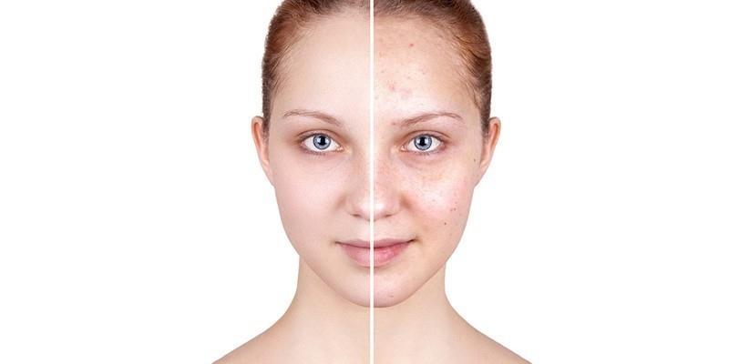 Polución, Ultra Violeta y Luz Azul, ¿Cómo afectan a tu piel?